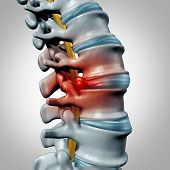 Herniated disk concept and spine pain diagnostic as a human spinal system symbol as medical health problem and anatomy symbol with the skeletal bone structure and intervertebral discs closeup. poster