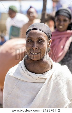 OROMIA, ETHIOPIA- OCTOBER 31, 2017: An unidentified woman has a large goiter from iodine deficiency in rural Ethiopia.