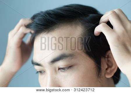 Young Man Serious Hair Loss Problem For Health Care Medical And Shampoo Product Concept, Selective F