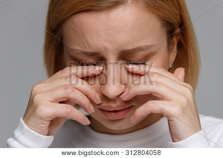 Close Up Of Young Woman Has A Problem With Contact Lenses, Rubbing Her Swollen Eyes Due To Pollen, D