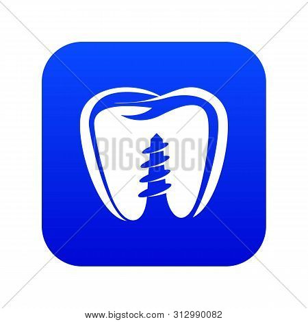 Denture Implant Icon. Simple Illustration Of Denture Implant Vector Icon For Web