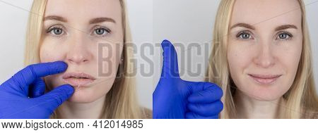 Before And After. A Woman Examines Dry Skin On Her Lips. Peeling, Coarsening, Discomfort, Skin Sensi