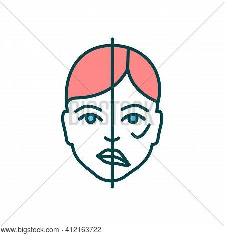 Face Paralysis Rgb Color Icon. Brain Tumor Sign. Muscles Moving Disability. Heart Stroke Aftermath.