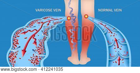 Varicose Veins On A Female Senior Legs. The Structure Of Normal And Varicose Vein. Vector Illustrati
