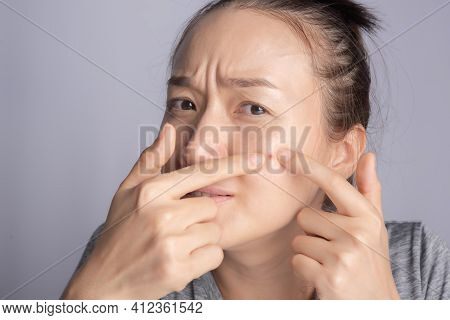 Young Beauty Woman Of Asian Squeezing Her Pimple, Removing Pimple From Her Face. Woman Skin Care Con