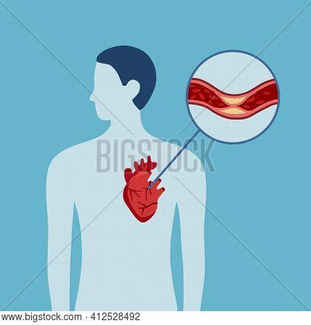 Silhouette Of Human Body With Coronary Heart Disease Problem. Cholesterol. Heart Failure. Heart Atta