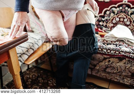 The Prosthetist Removes The Measure From A Person With A Disability, Woman With Amputee.