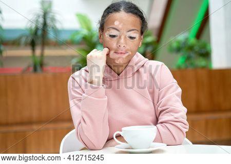 Black African American Woman With Vitiligo Pigmentation Skin Problem Indoor Dressed Pink Hoodie Mela