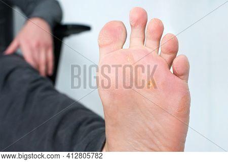 Foot With Corns, Calluses And Dry Skin, Wart Plantar Verrucas. Verrucas Papilloma Callus Virus, Dise