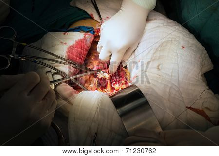 Suture Close Lumbar Artery In Abdominal Aortic Aneurysm