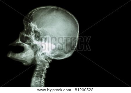 X-ray Skull Open Mouth ( Side View ) And Stroke ( Cerebrovascular Accident ( Cva ) )
