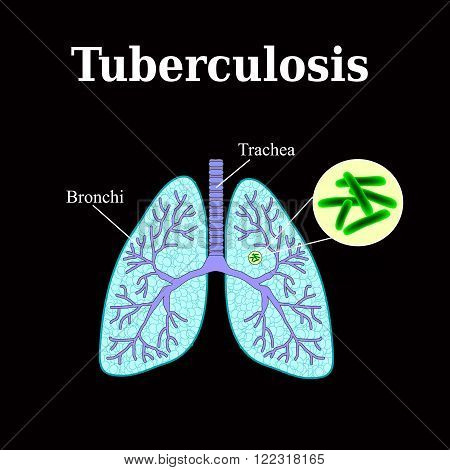 Tuberculosis. Lung disease. Tubercle bacillus. Vector illustration on a black background