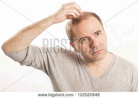 Baldness Alopecia man face hair loss haircare white background