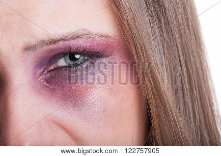 Closeup of a black eye of a beaten woman as a domestic violence victim