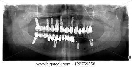 Dental x-ray with periodontitis problems decayed teethimplant