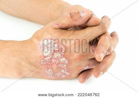 Psoriasis vulgaris on the male hands with plaque, rash and patches, isolated on white background. Autoimmune  genetic disease.