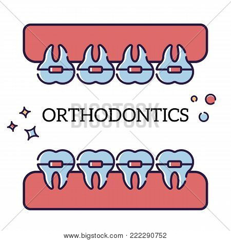 Vector flat illustration on white background in cartoon style. Jaw with teeth in braces. Orthodontist procedure