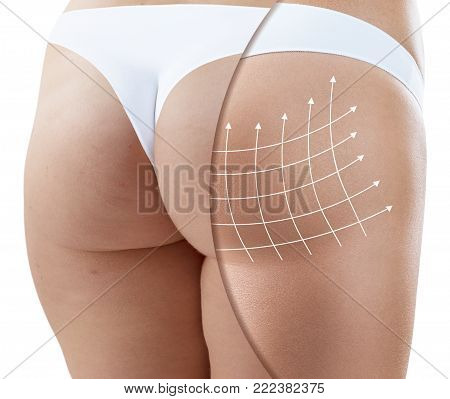 Female buttocks with arrows grid before and after plastic surgery. Isolated on white.