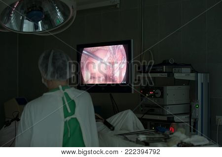 City Gomel, Belarus.May 31, 2017 Gomel medical hospital.Doctors in the operating room do laparoscopy.The operation of internal organs of man.Profession surgeon