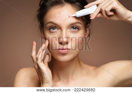 Teen girl with problem skin appling treatment cream on beige background. Skin care concept