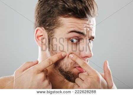 Close up portrait of bearded man squeezing pimples on his cheek, isolated over gray background