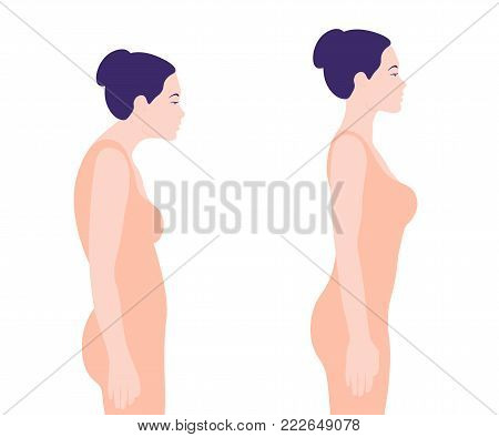 Young woman with a wrong posture. Spine. Profile. Vector illustration on white background. Minimalism