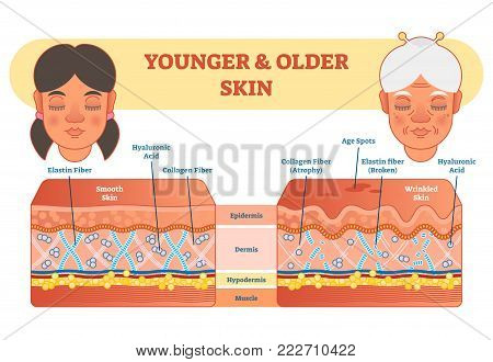 Older and younger skin comparison diagram, vector illustration scheme, young girl and older lady face.