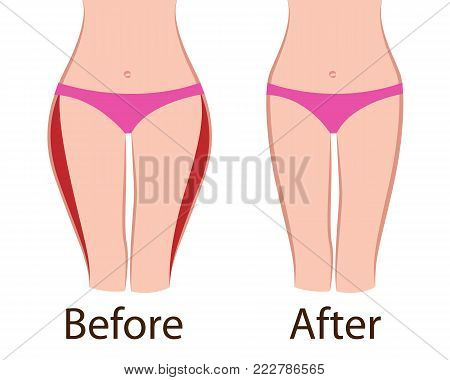 Fat and slim girls' hips. Before and after. vector illusstration