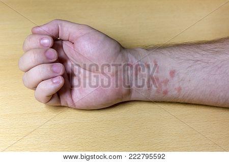 Human Skin In Red Spots.