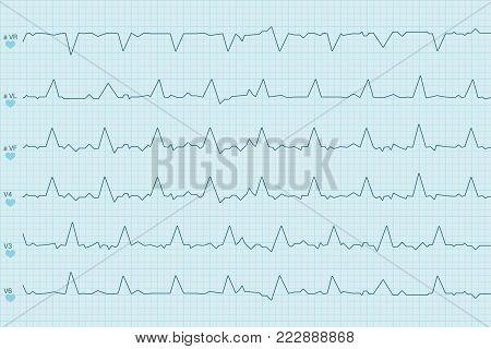 Electrocardiogram test results. Curves on blue paper. Vector illustration