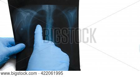 The Doctor Points To Lung Damage In Coronavirus Pneumonia On X-ray Image Of Lungs.detection Test Of