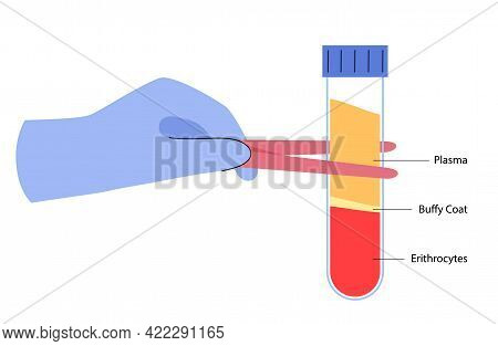 Blood Composition In Proportions, Plasma, Buffy Coat, Erythrocytes. Human Blood Structure Graphic Co