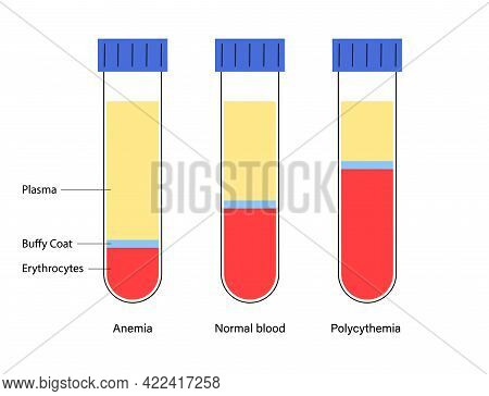Blood Composition In Proportions, Plasma, Buffy Coat And Erythrocytes. Specimens With Anemia, Normal