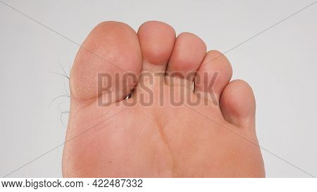 Asian Male Barefoot .close Up Of Big Toe,little Toe, And Foot Sole Is Isolated On White Background.
