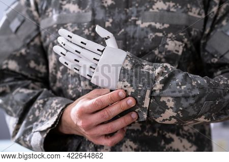 Soldier Artificial Prosthetic Limb Hand. War Veteran