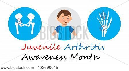 Juvenile Arthritis Awareness Month Concept Vector. Rheumatoid Arthritis Of Hip, Arm. Treat Rheumatis