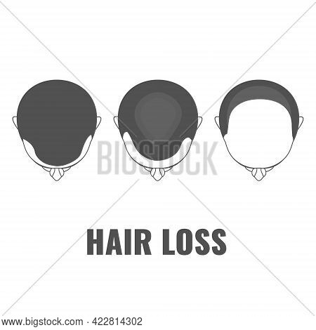 Male Pattern Baldness Three Steps Infographics Template
