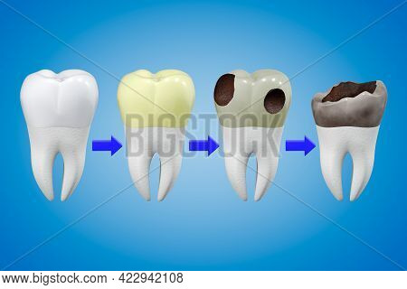Scheme Of Sequential Tooth Deterioration From A Healthy Tooth To A Lost Tooth. Dental Hygiene Concep