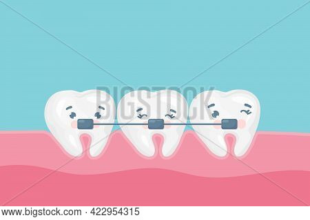 Dental Braces Vector Poster Banner Template. Cute Happy Teeth With Metal Braces. Orthodontic Treatme