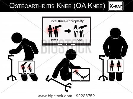 Old Man Pain At His Knee , Monitor Show Image Of Total Knee Arthroplasty