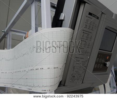 Print of fetal heart rate