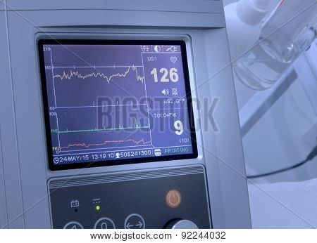 Display of fetal heart rate