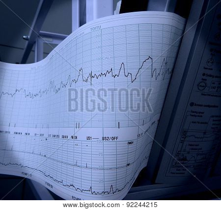 Printed cardiogram of fetal heart rate