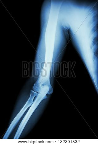 film x-ray of normal arm elbow and forearm ( black background )