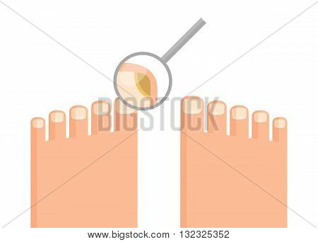 Human feet and magnifying glass in which can be seen that toenail is struck by mycosis. Hygiene and health concept. Stylized drawing