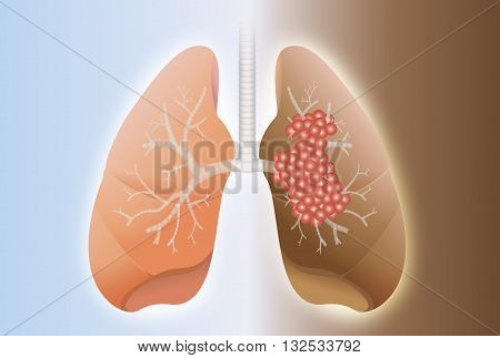 Comparative between healthy lung and cancer lung on difference background.