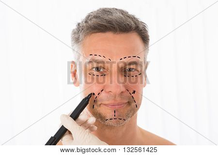 Close-up Of Surgeon Hands Drawing Correction Lines On Man Face With Marker