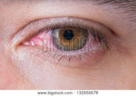 Macro of conjunctivitis red eye. Medicine concept.