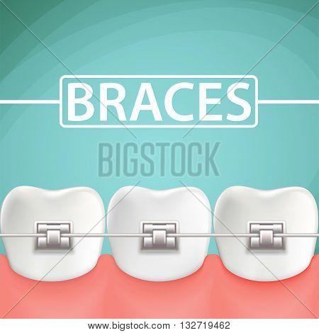 Human teeth with metal braces. Stock Vector cartoon illustration.