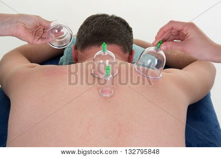 Multiple Vacuum Cup Of Medical Cupping Therapy